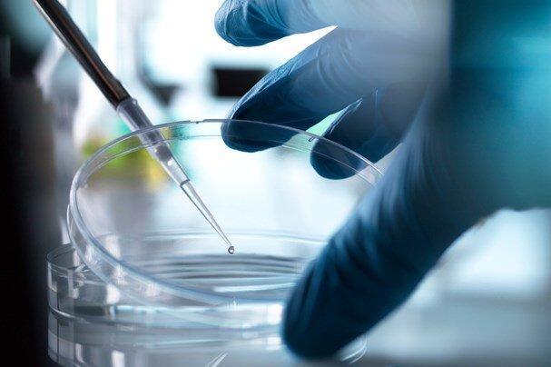کوشش برای ساخت واکسن کرونا، نقش سلول های مزانشیمی در درمان