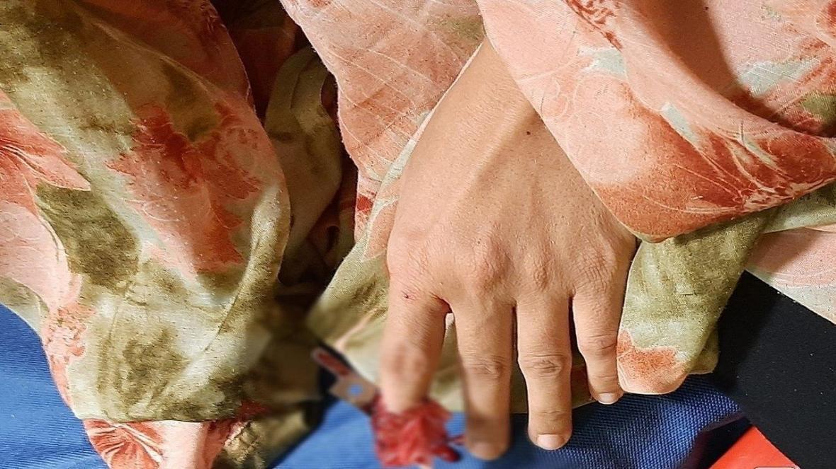 بی احتیاطی زنی به هنگام استفاده از مخلوط کن دراستان