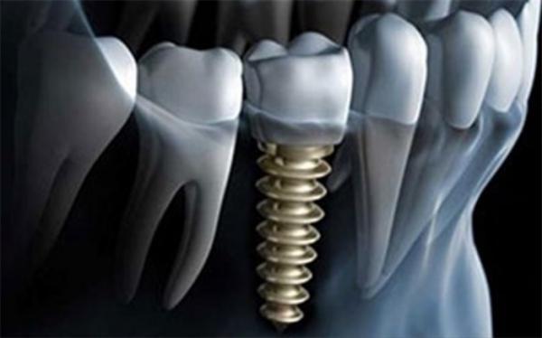 بهره برداری از طرح فراوری ملی ایمپلنت دندانی با حمایت صندوق نوآوری و شکوفایی