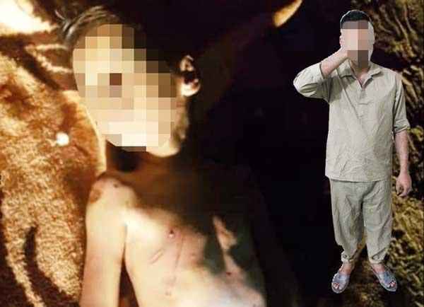 کودک 6 ساله قربانی جنایت ناپدری شیشه ای